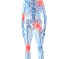 boli inflamatorii degenerative articulare unguent gel pentru dureri articulare