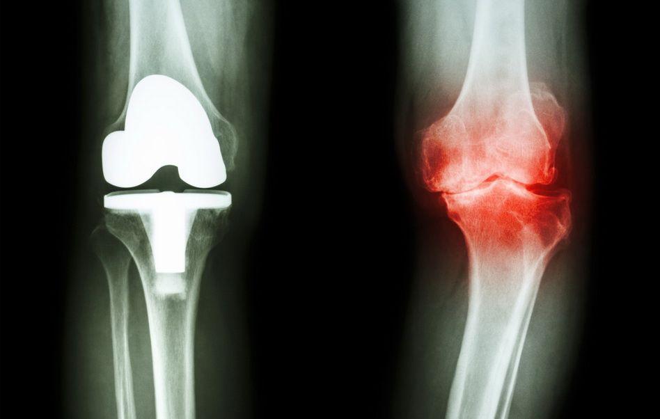 umflarea genunchiului după alergare tratamentul articulațiilor genunchiului artroza sau artrita
