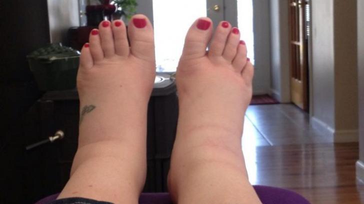 picioarele umflate dimineața pentru restaurarea ligamentelor și articulațiilor