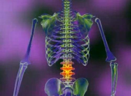 artroza tratamentului coloanei lombare dureri articulare medicina tibetană