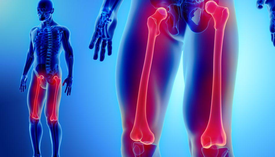 timpul de tratament al fracturilor de șold