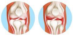 afectarea soldului tratamentul răsucește articulațiile
