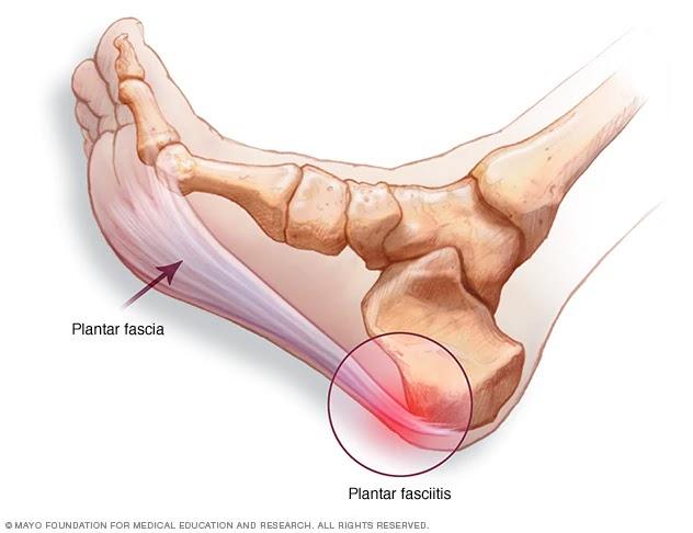 durere în osteoporoză la nivelul articulației șoldului