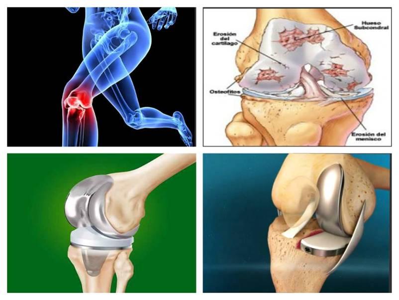 artroplastia genunchiului dureri severe după operație dureri articulare și cancer