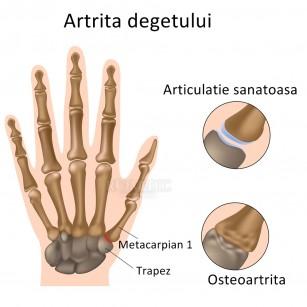 artrita tratamentului degetelor mijlocii dureri articulare transmise