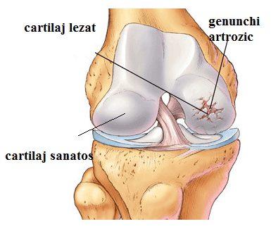mașină de genunchi de artroză injecții și unguent pentru dureri articulare