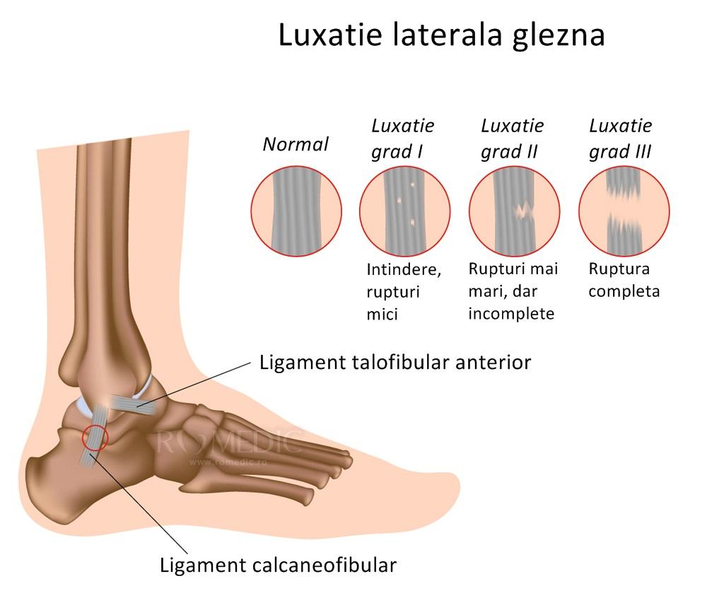 fracturi ale tratamentului articulației gleznei ce unguente pentru a trata artroza genunchiului