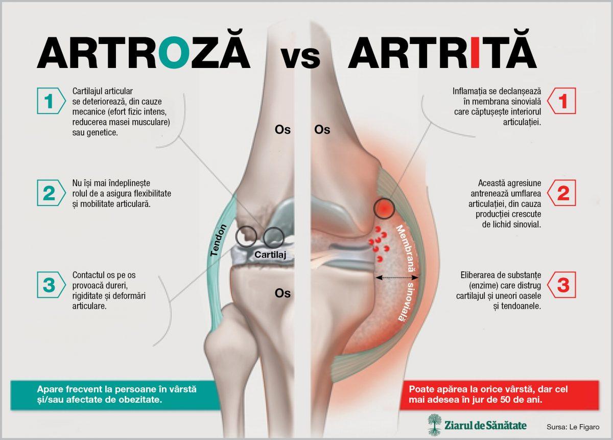 artrita și tratamentul simptomelor artrozei