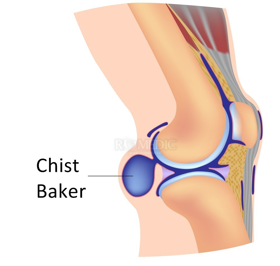 durere de box la cot inflamația mușchilor și ligamentelor genunchiului