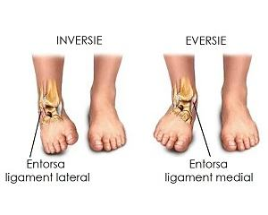 recuperare după entorsa genunchiului