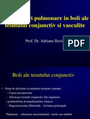 artroza de gradul 1 al tratamentului articulației umărului cum pot ameliora durerile articulare în cancer