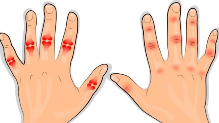 artrita tratamentului degetelor mijlocii tratamentul sternului artrozei claviculare
