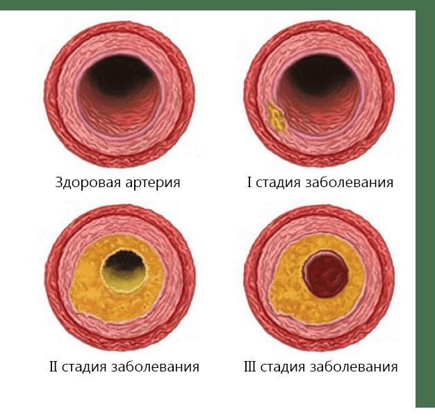 simptomele problemelor articulare sinovita medicației articulației genunchiului