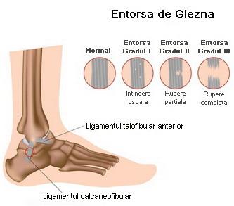 ruperea ligamentelor gleznei boala contagioasa a articulatiilor