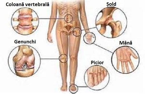 Bei ierburi pentru durerile articulațiilor genunchiului Numita