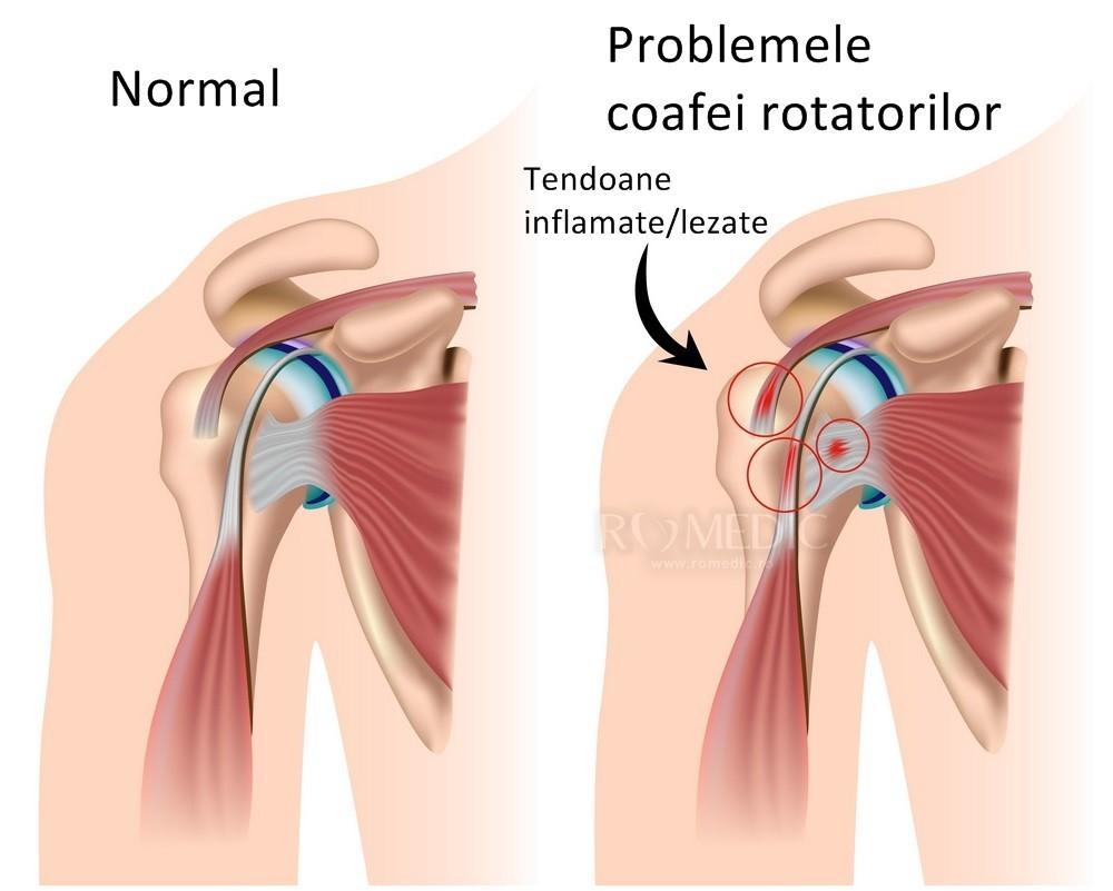 numele bolilor articulației umărului tratament post-traumatic al inflamației articulare