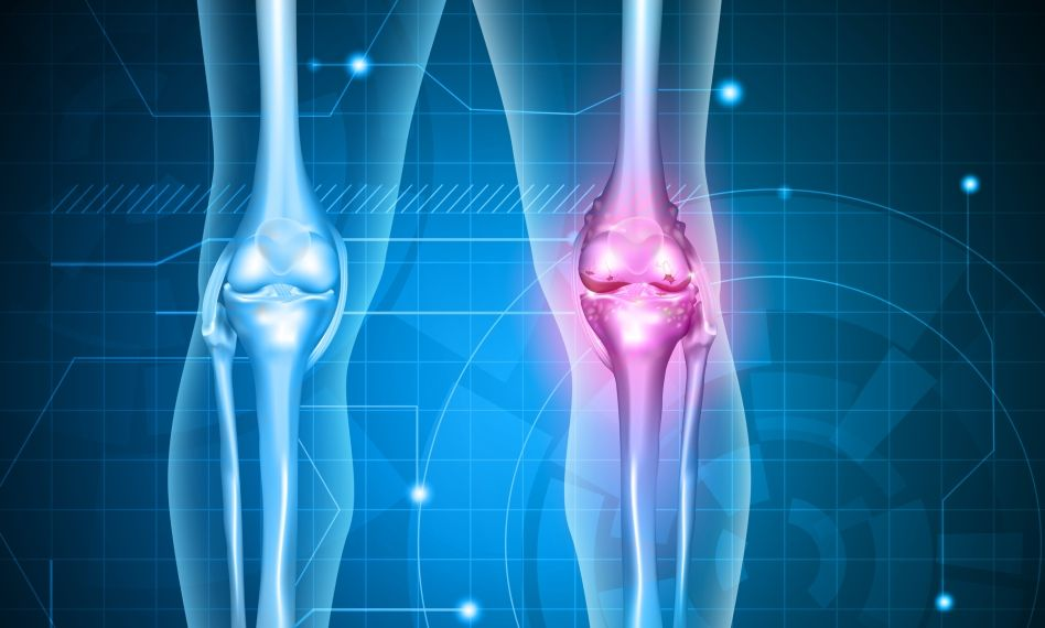 de ce începe artroza genunchiului