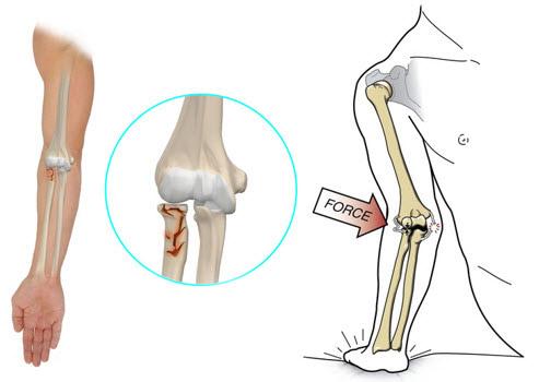 recuperarea fracturii condilului cotului gel de articulații visco