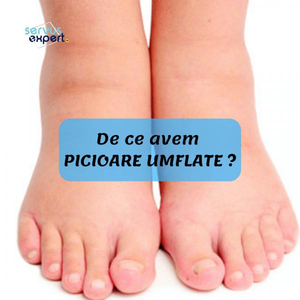 care tratează artrita piciorului