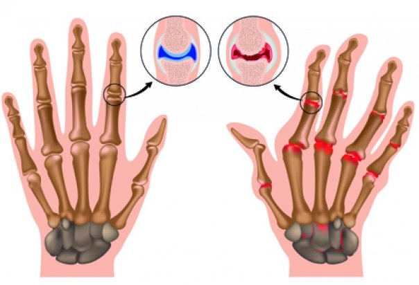 artritele articulare semnează un tratament simptome și tratament reumatism articular