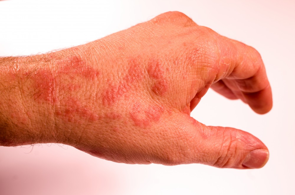 dureri articulare umflare pete roșii de ce articulația doare noaptea