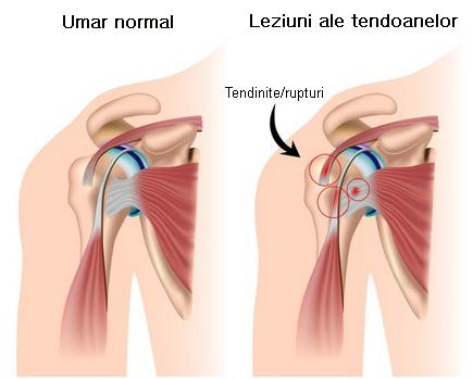 durere de umăr ridica dureros brațul crăpături și dureri la nivelul articulațiilor cotului
