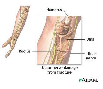 dureri de cot cu pumnul încleștat blocaj în artrita articulației șoldului
