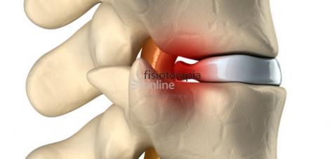 vindecarea durerilor de cot tetraciclină pentru inflamația articulațiilor