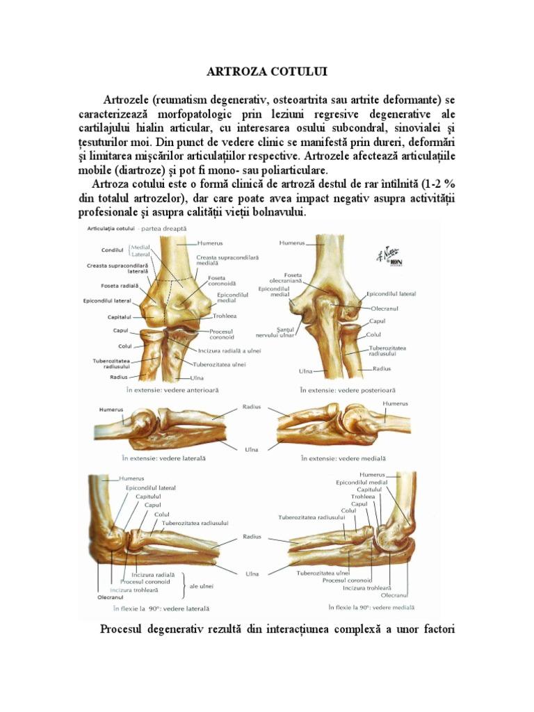 artroza articulației cotului de gradul I