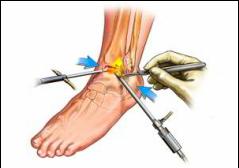 refacerea cartilajului în articulația gleznei