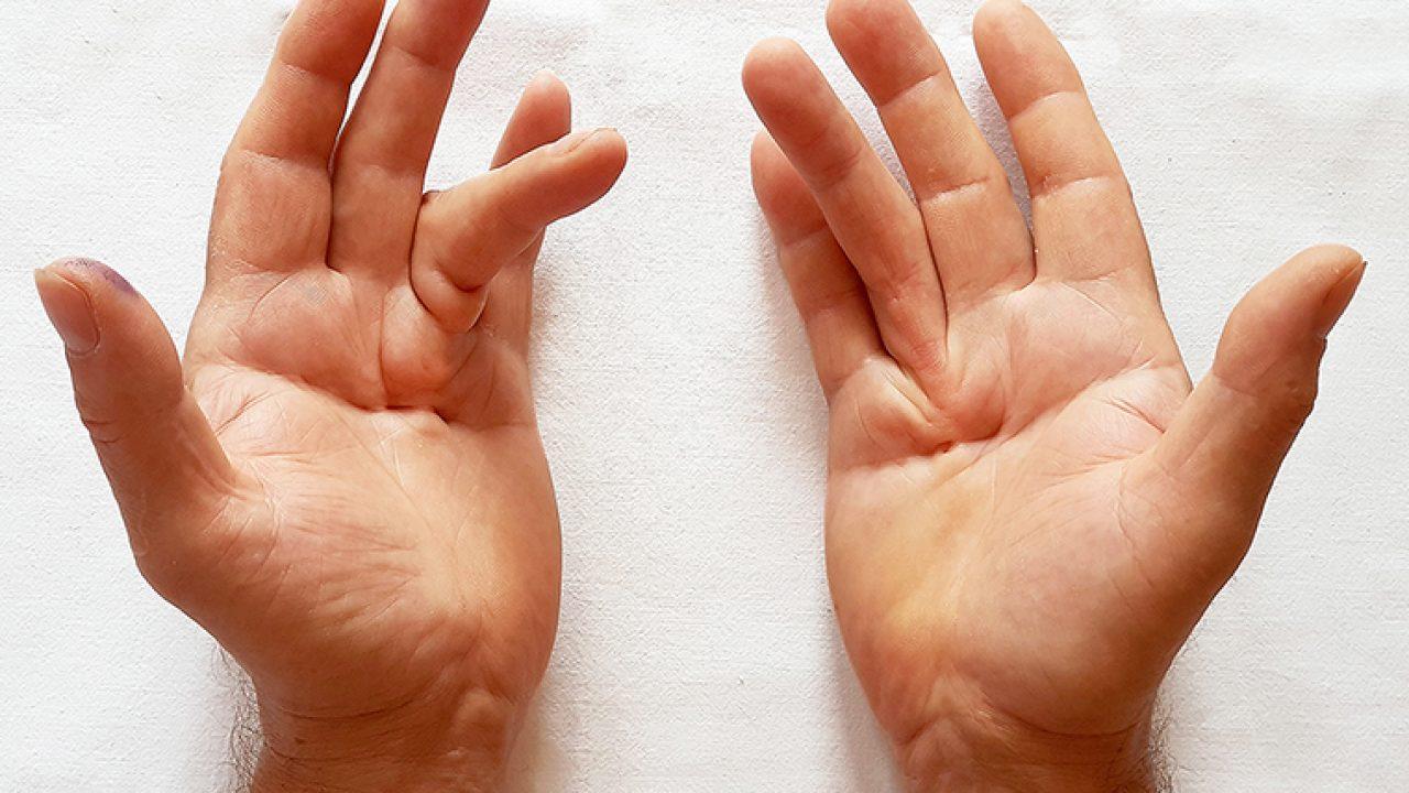 artroza deformantă a semnelor articulației gleznei
