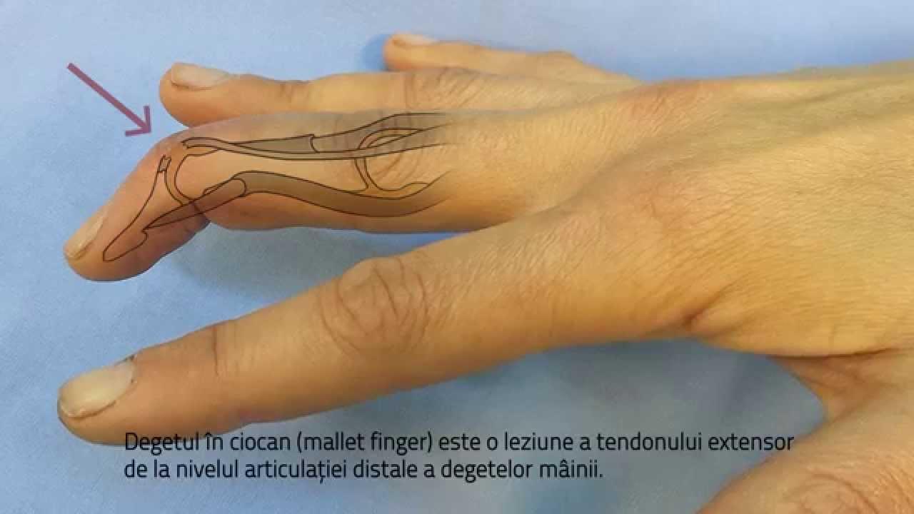 tratamentul durerii la crengi de umăr osteoartroza tratamentului de coxartroză la șold