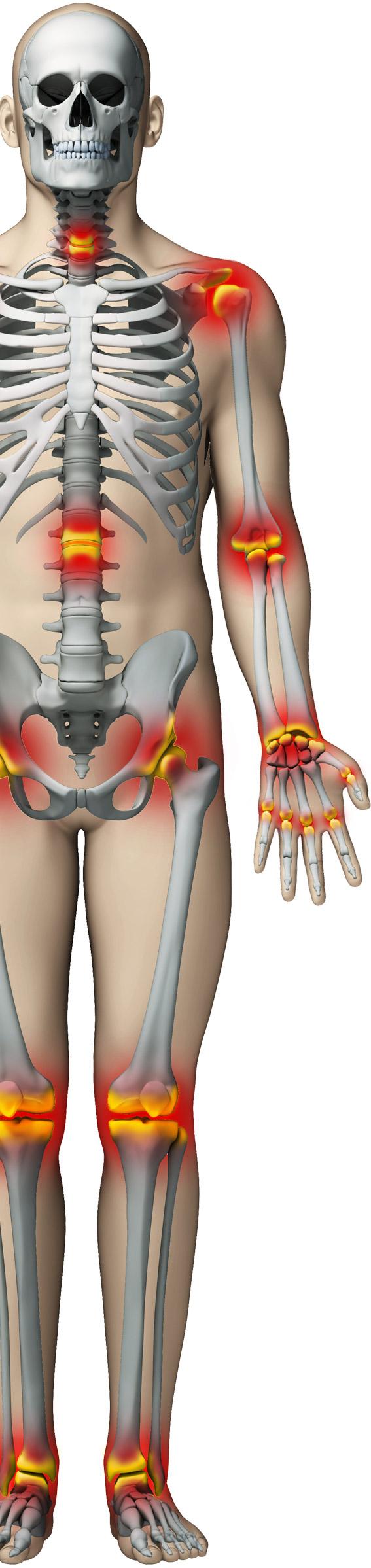 medicina pe bază de plante doare articulațiile