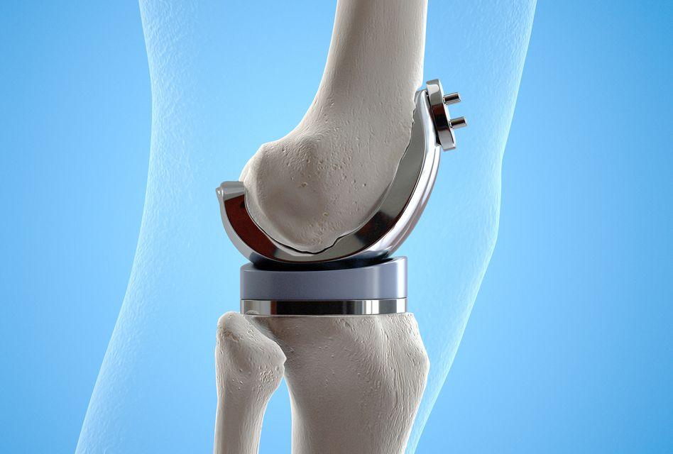 după durere de genunchi înlocuirea șoldului câte boli articulare există