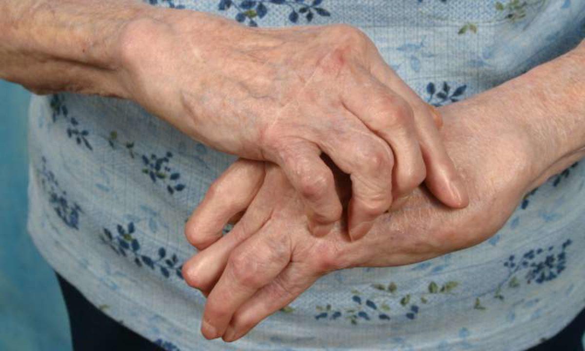 condroprotectoare pentru artroza articulației genunchiului don