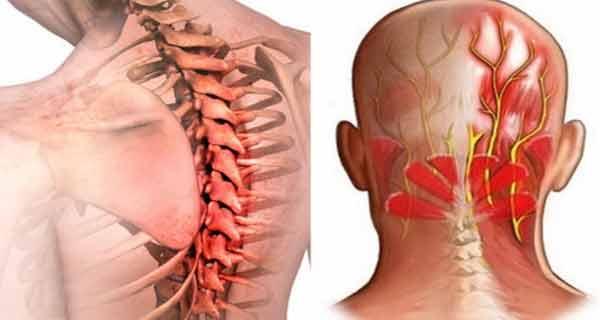 crize și durere a articulațiilor gâtului dureri articulare de la antidepresive