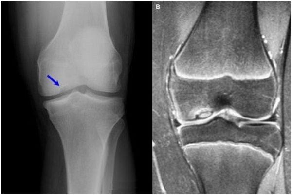 ceea ce este prescris pentru artroza articulației genunchiului bioptron pentru artroza genunchiului
