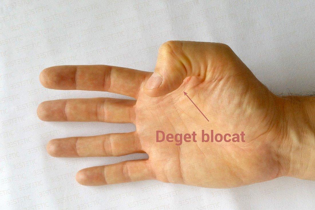 mâinile deteriorate de artrită tratamentul genunchiului cu bilă medicală