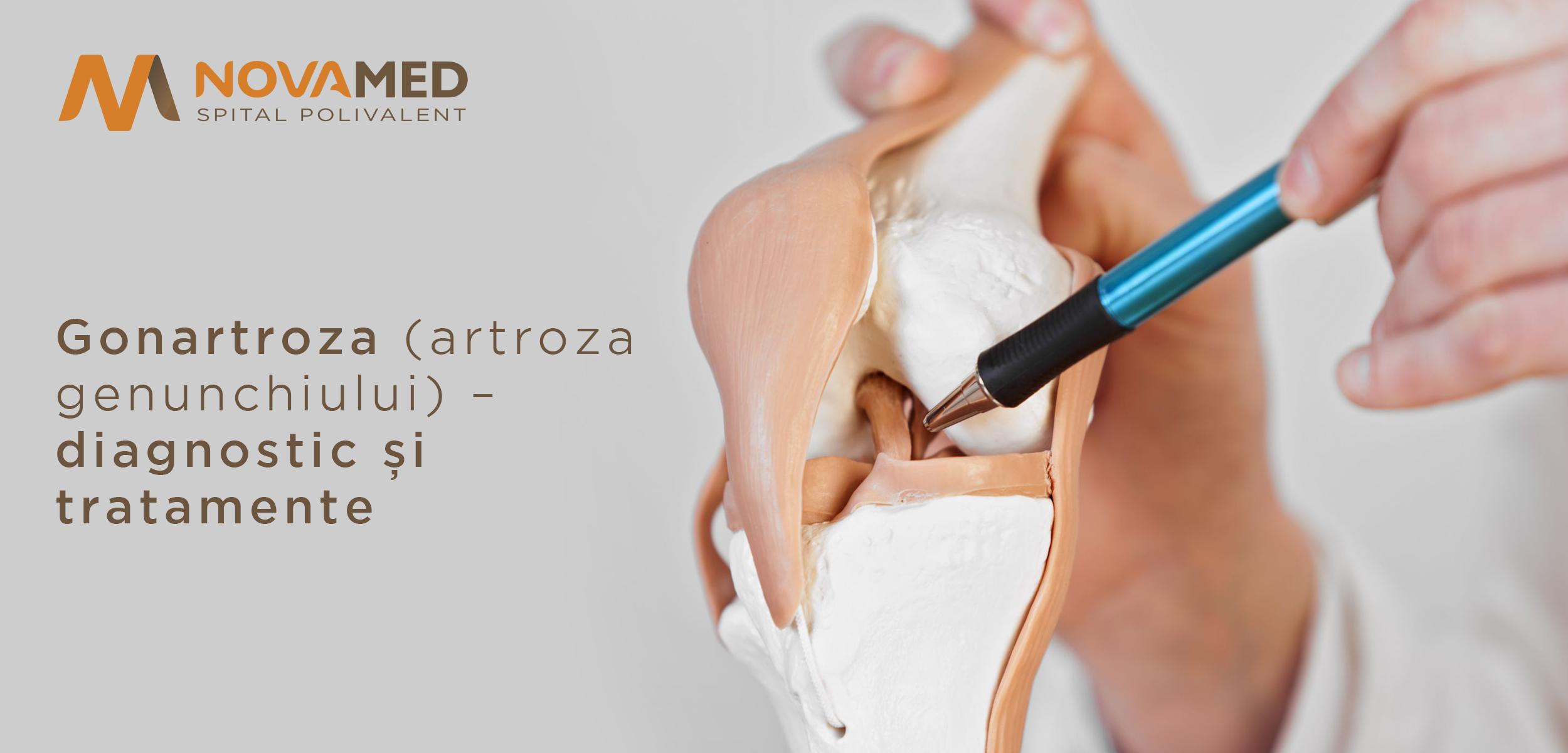 modelarea cu artroza genunchiului durere în articulația umărului drept și a gâtului