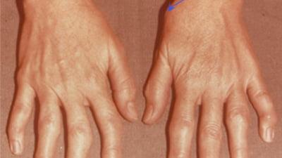 cauza durerii articulare pe deget tratamentul cremei cu gel comun