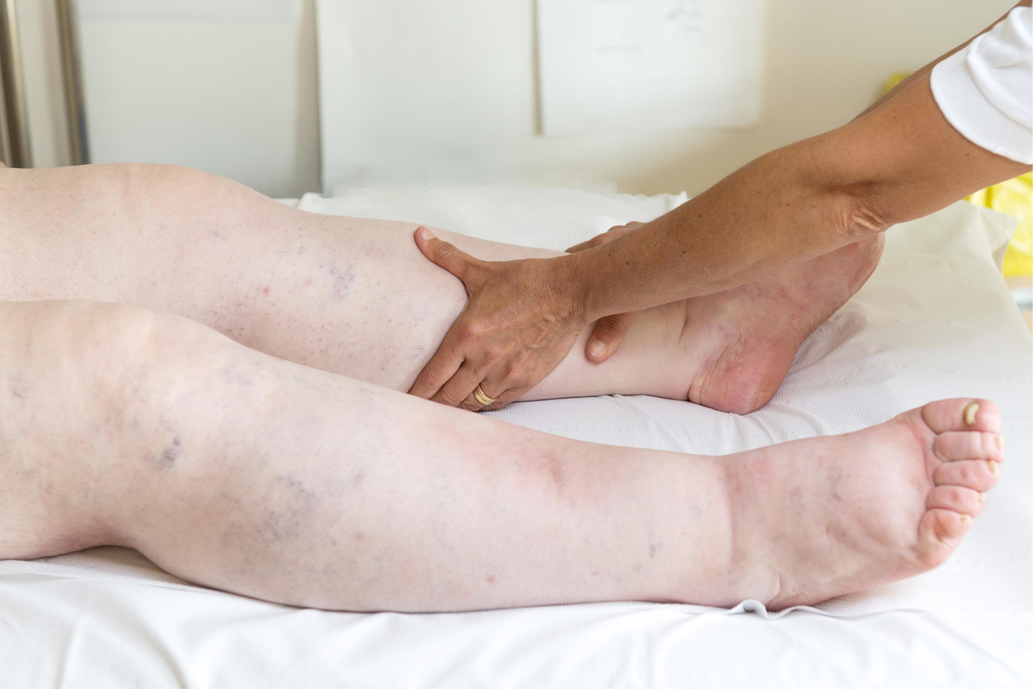 de ce rănesc picioarele și gleznele tratați articulațiile cu urina