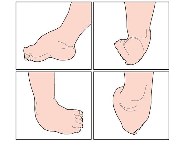 articulațiile picioarelor doare în timpul creșterii tratamentul artrozei de gradul 1 al piciorului