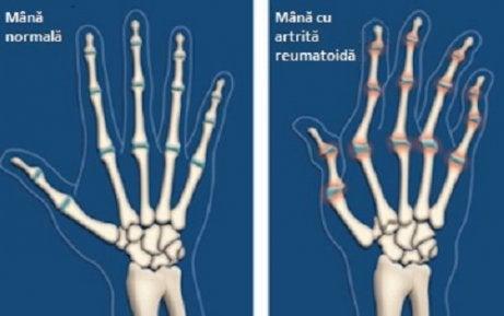 artrită mâini descriere tratament articular cu golovin