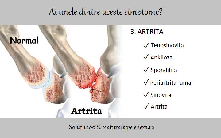 artrita complicatiilor articulatiei cotului
