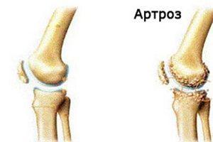 artroza articulațiilor piciorului din prima etapă