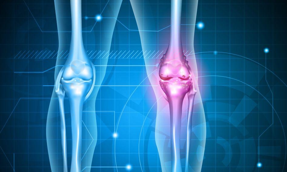 artroza de compresie a genunchiului există o creștere a esr pentru durerile articulare