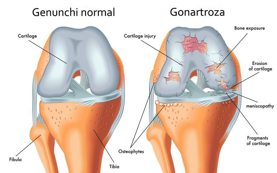 artroza de compresie a genunchiului durere tiroidiană în mușchi și articulații