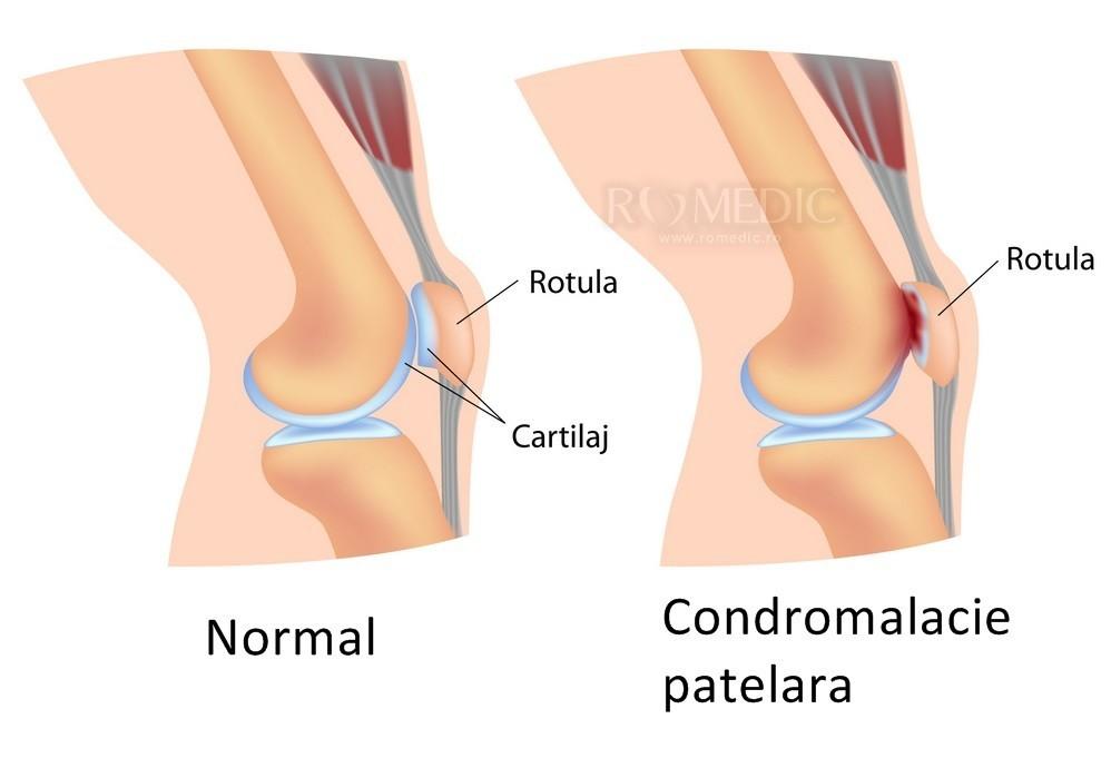 artroza structura articulației genunchiului decât ameliorarea durerii articulare severe
