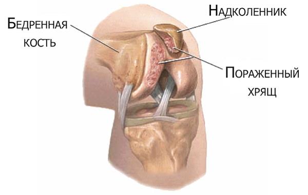 artroza tratamentului articulației genunchiului cu brusture