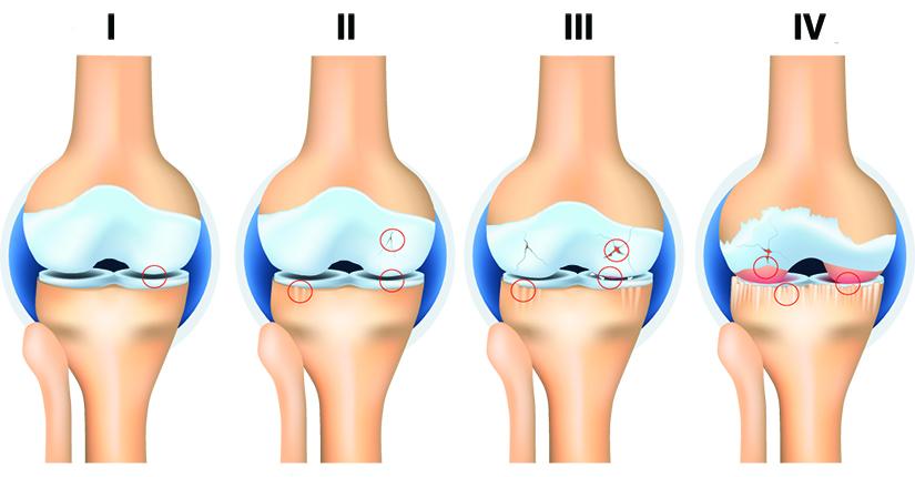 artroza deformată a articulației genunchiului stâng